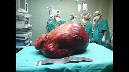 Arequipa: extirpan tumor de 20 kilos a sexagenaria