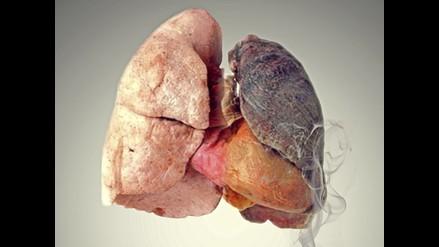 Siete enfermedades que puedes padecer si no dejas de fumar