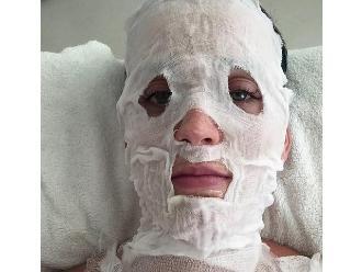 Katy Perry: ¿Qué pasó con su rostro?