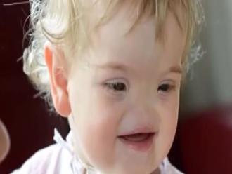 Conoce a Tessa Evans, la niña que tendrá nariz gracias a una impresora 3D