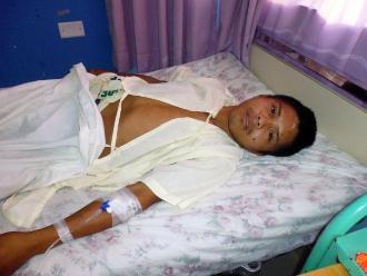Bagua: joven nativo quedó postrado tras descarga de perdigones