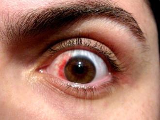 Hallan el mecanismo molecular que causa la enfermedad del ojo seco