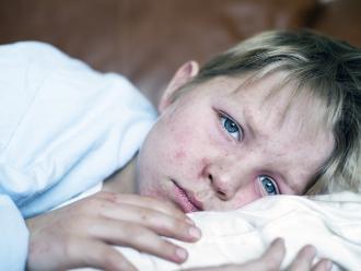 Según especialista: Desde el 2002 ya no se presentan casos de sarampión