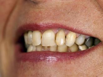 El 90% del cáncer bucal se da por el descuido de las personas