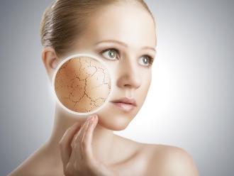 Cinco remedios naturales para combatir la piel seca