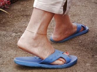 Usar sandalias como calzado habitual puede provocar lesiones