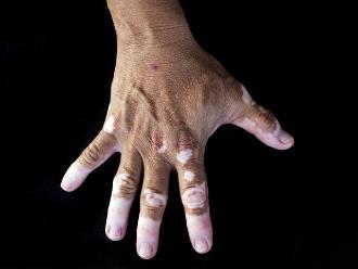 Tratamiento con nuevo láser da esperanza a pacientes que sufren de vitiligo