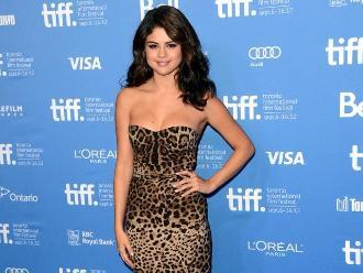 ¿Selena Gómez se realizó cirugía estética?