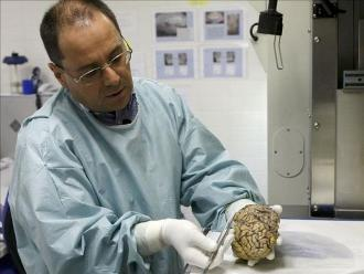 Prueban con éxito en Brasil mantequilla enriquecida para tratar Alzheimer