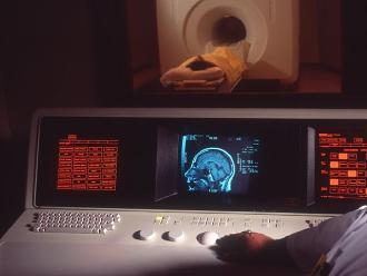 Crean anticuerpo que puede prevenir ciertos tipos de neurodegeneración