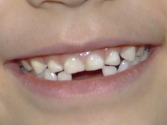 ¿Por qué es importante el cuidado de los dientes de leche?