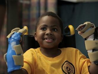 Zion Harvey, el primer niño en recibir un trasplante de manos