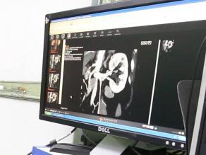 Francia: usan robot para primer trasplante renal por vía vaginal