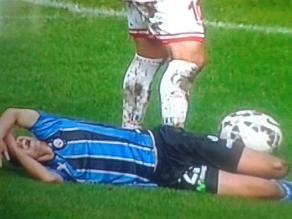 Eliseo Miranda y la desgarradora fractura de rodilla en el fútbol chileno