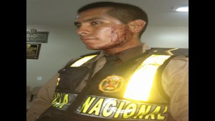 Chiclayo: conductor se resiste a intervención y corta con un vidrio a policía