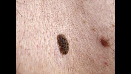 ¿Cuándo un lunar puede ser una señal de cáncer a la piel?