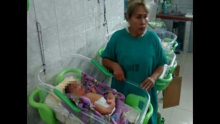Chimbote: nace niño con dos narices en el hospital La Caleta