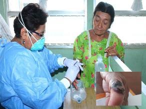 Piura: casos de ántrax suman 56 en la región