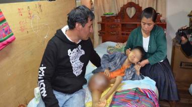 Menor con tumor gigante será llevado a Lima