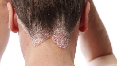 Una de cada cinco consultas de dermatología son por psoriasis
