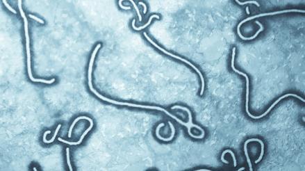 Ébola: virus permanece hasta 9 meses en semen de enfermos, según estudio