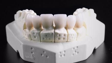 Crean dientes con impresión 3D que serán antibacterianos