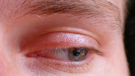 España: 13 quedan ciegos de un ojo debido a un producto quirúrgico
