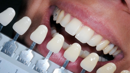 Holanda: desarrollan dientes en 3D que pueden combatir la placa bacteriana