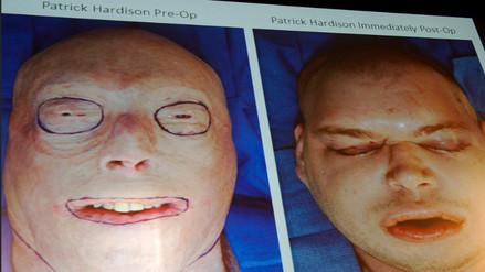 Realizan en Nueva York el trasplante de cara más complejo hasta la fecha