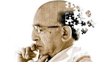 La ausencia de una proteína en las neuronas sería la causa del alzhéimer
