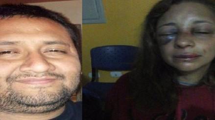 Sujeto que agredió a su pareja será investigado solo por lesiones leves