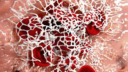 Desarrollan anticuerpo para hemofilia A grave que rechaza tratamiento