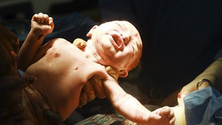 Parto vertical: práctica ancestral que reduce la mortalidad materna