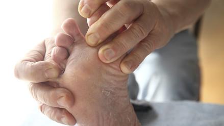 ¿Cómo prevenir la aparición de hongos en pies y uñas?