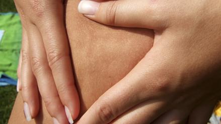 ¿Cómo prevenir la celulitis desde la alimentación?