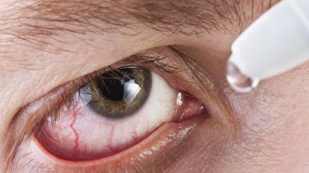 Invierno: 4 formas de combatir el ojo seco