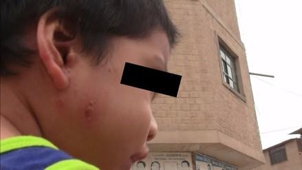 Denuncian lesiones en la piel de menor de 2 años tras colapso de desagües
