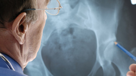 Personas extremadamente delgadas pueden padecer de osteoporosis
