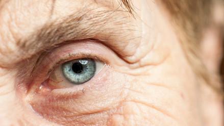 Utilizan células madre para regenerar ojos con cataratas