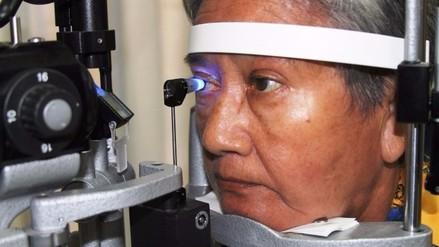 Lo que debes saber del glaucoma
