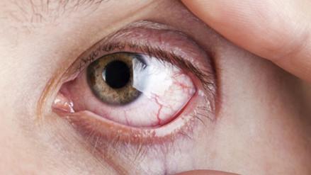 Dispositivos electrónicos pueden provocar estrés visual