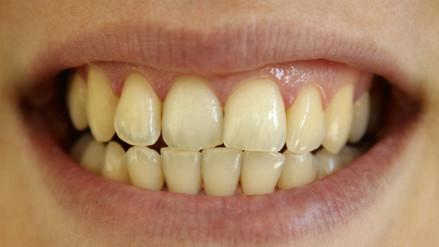 Tengo los dientes amarillos, ¿qué estoy haciendo mal?