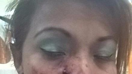 Juliaca: desfiguran el rostro a cantante folklórica tras realizar concierto