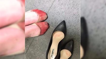 Facebook: denuncia abuso laboral con foto de pies sangrando