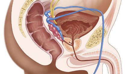 ¿Cómo se logra un trasplante de pene?