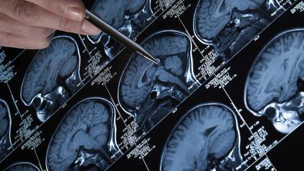 Síntomas de tumores raros se parecen a trastorno de atención en niños