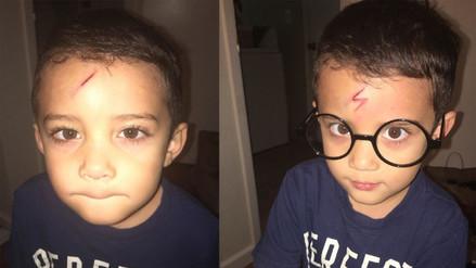 Una madre transforma la cicatriz de su hijo en la de Harry Potter
