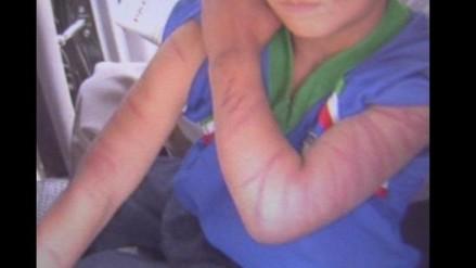 Maltrato infantil: padre golpeó a niña de 11 hasta dejarla inconsciente