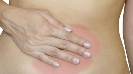 Sangrado vaginal inusual puede ser síntoma de cáncer de endometrio