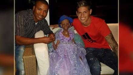 James Rodríguez tuvo gran gesto con adolescente enferma de progeria